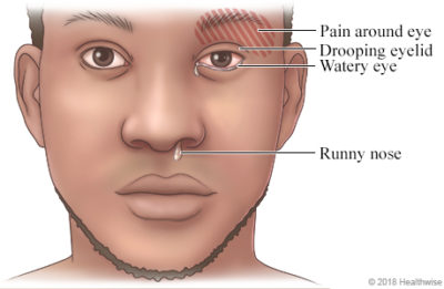 Illustration of Headache Pain Up To Neck And Nose?