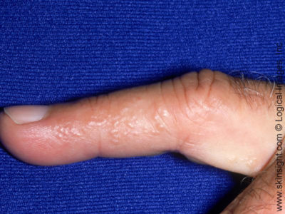 Illustration of Itchy White Spots On The Fingers?