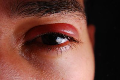 Illustration of Are The Eyes Swollen The Effects Of Shingles?