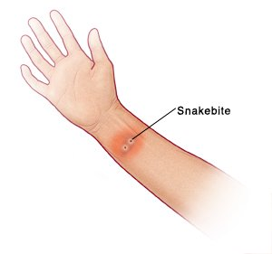 Illustration of Itching After Being Bitten By A Snake?