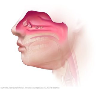 Illustration of The Difference Between Sinusitis And Polyps?