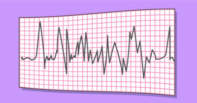 Illustration of Is A Normal EKG Sure There Are No Problems And Normal?