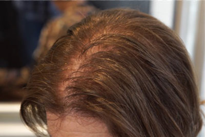 Illustration of After Balding, Can You Lose Your Gray Hair?