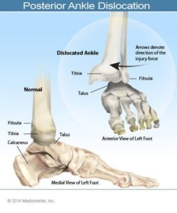 Illustration of Dislocation Of The Ankle Joint?