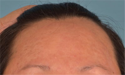 Illustration of Allergy On The Forehead?