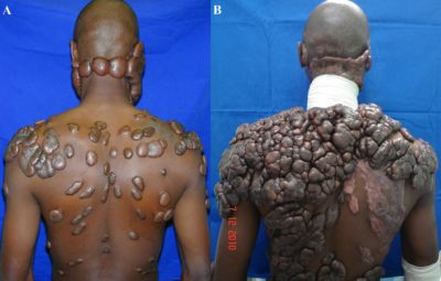 Illustration of Keloid In Burns, Duration Of Healing And Treatment?