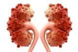 Kidney Cysts?