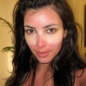 Illustration of How To Deal With Redness Of Sunburn On The Face?