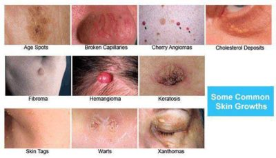 Illustration of How To Deal With Recurring Benign Skin Tumors?