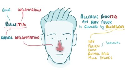 Illustration of The Cause Of Chronic Allergies?