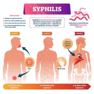 Illustration of The Possibility Of Recovering From Syphilis?