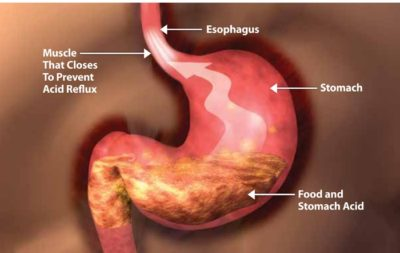 Illustration of The Severity Of My Stomach Acid Disease?