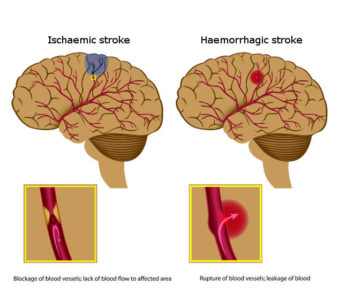 Illustration of Can The Brain Damage Caused By Smoking Be Cured?