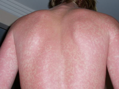 Illustration of Burning Sensation, Dry Skin And A Rash Appearing During Plaquenil Therapy?