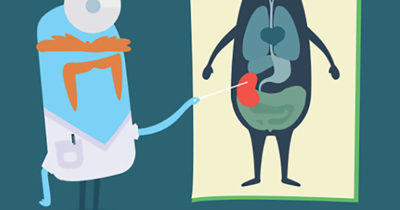 Illustration of Different Conditions In People With 1 Kidney?