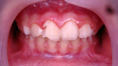 Illustration of How To Deal With Remaining Root Teeth In Children Aged 5 Years?