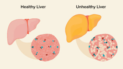 Illustration of What Is Meant By Fatty Liver?
