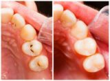 Dental Care After Tooth Filling?