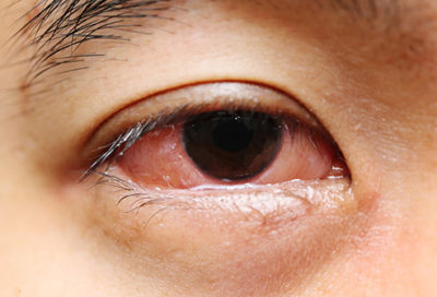Illustration of The Right Eye Is Watery, Fuzzy And There Are Bruises And Numb Ears After The Injury?