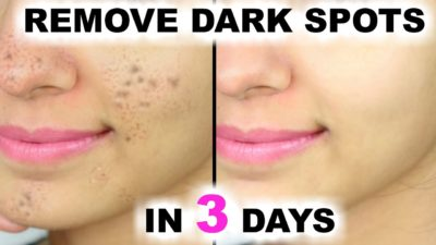 Illustration of What Is The Medicine For Black Spots On The Facial Skin Due To Minoxidil And Vitacid?