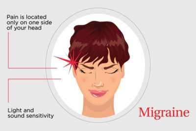 Illustration of The Headache At The Top Feels Like It Wants To Burst?