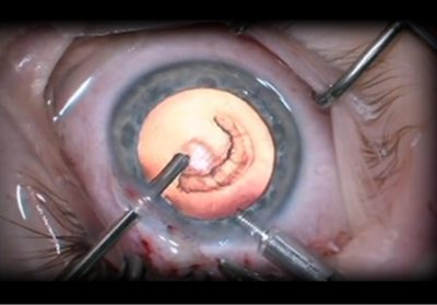 Illustration of Can Traumatic Cataracts In 6 Year Olds Be Cured?