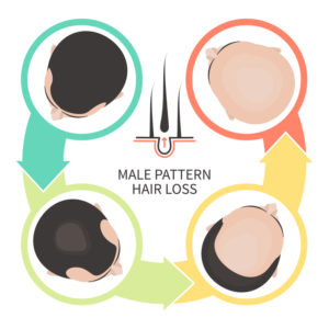 Illustration of Hair Loss Occurs?