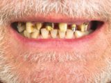 How To Use Ointments For Scurvy?