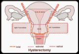 The Right Time For Postoperative Intercourse Outside The Womb?