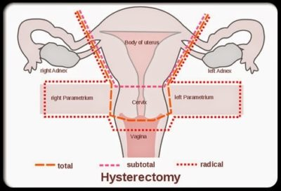 Illustration of The Right Time For Postoperative Intercourse Outside The Womb?