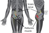 Numbness From The Buttocks To The Lower Leg (heel)?