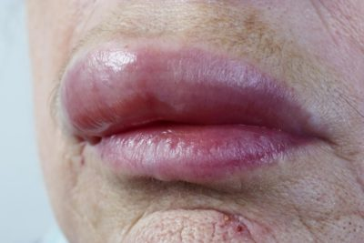 Illustration of The Lips Are Swollen And Stiff After Taking The Medicine?