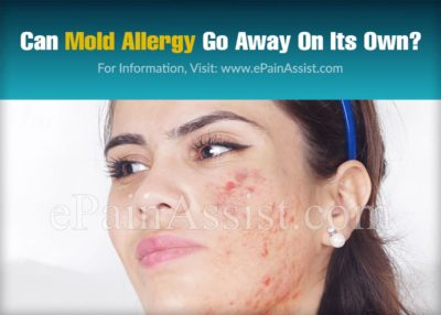 Illustration of Can The Allergy Go Away On Its Own?