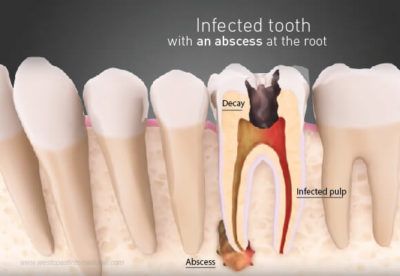 Illustration of Overcoming Tooth Abscesses And Forming Small Lumps?