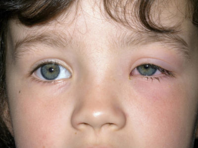 Illustration of Puffy Eyes In Toddlers?