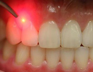 Illustration of Using A Laser To Treat Swollen Gums?