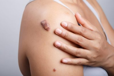 Illustration of How To Get Rid Of Contraceptive Injection Scars?