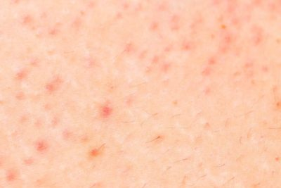 Illustration of Red Spots Resembling Pimples On The Skin Of The Stomach?