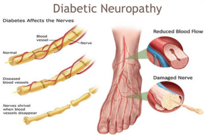 Illustration of Diabetes And Neuropathy?