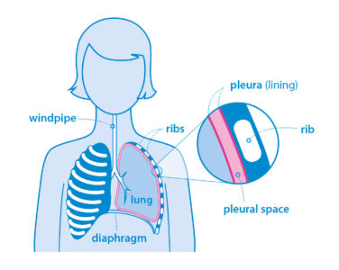 Illustration of Treatment For Thickening Of The Pleura?