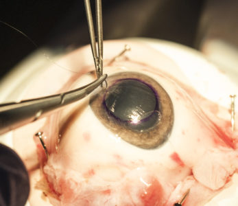Illustration of Overcoming The Scar Operation Of The Fish Eye With Pus And Redness?