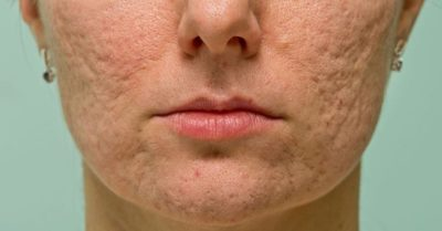 Illustration of Overcoming Scars Caused By Pressing Blackheads?