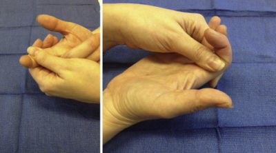 Illustration of Overcoming Swelling In The Non-cast Hand?