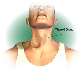 Illustration of Bloody Saliva In People With Thyroid Cancer?