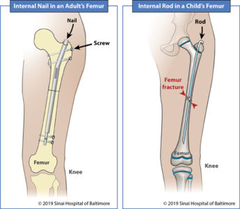 Illustration of Time To Remove The Pen On The Arm Bone?