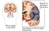 Duration Of Surgery For Blood Clots In The Brain And Fractures?