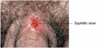 Illustration of The Vagina Bleeds When You Have Genital Herpes?