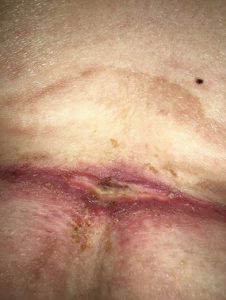 Illustration of Overcoming Red Spots On The Body After Taking Body Fat Drugs?
