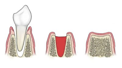 Illustration of Drugs Taken Before And After Tooth Extraction?