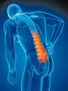 Illustration of Causes Of The Spine Pain And Difficulty Lying Straight?
